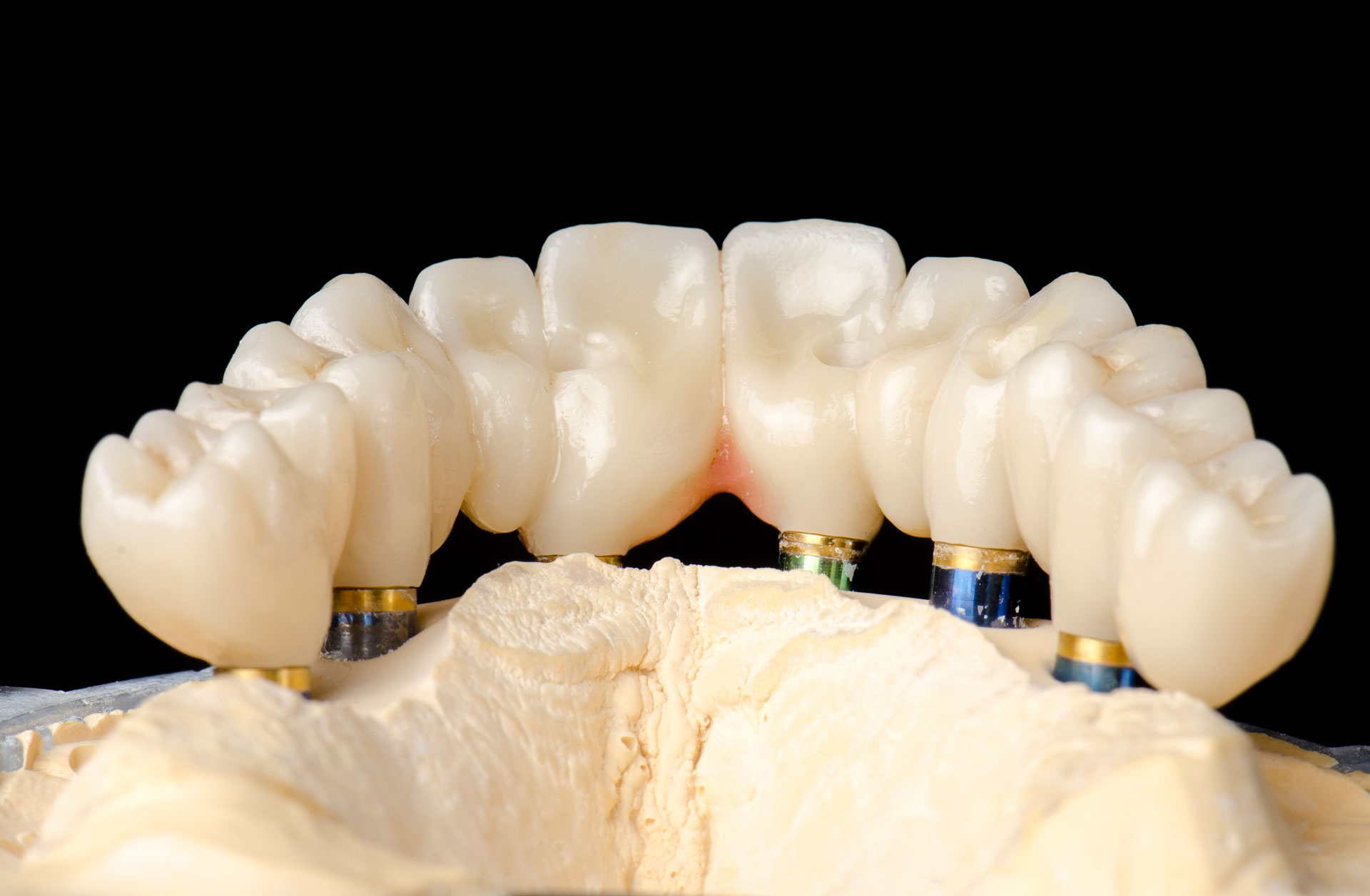 Fixed partial dentures pa