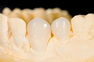 Philadelphia dental caps removables