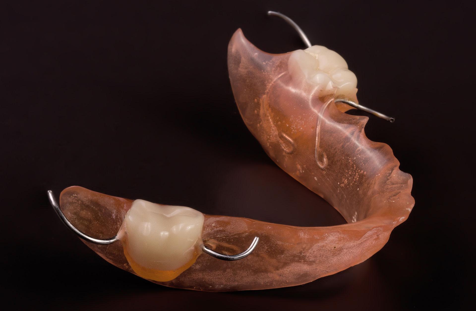 ceramics dental lab pa