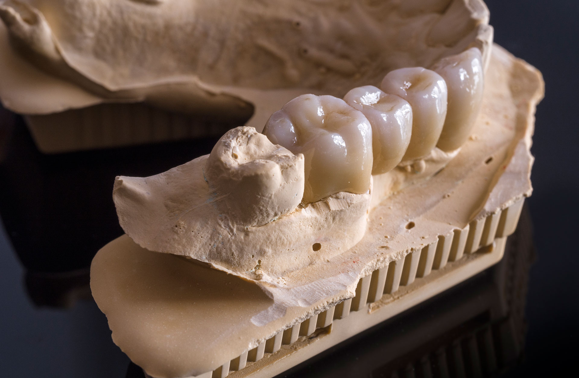 dental lab bucks county