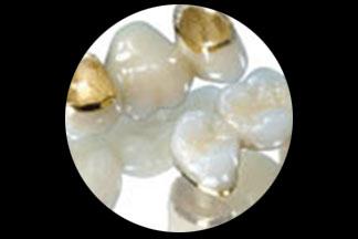 Clearmet dental lab montgomeryville
