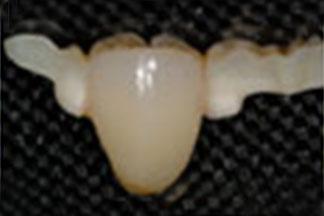 ceramic dental lab