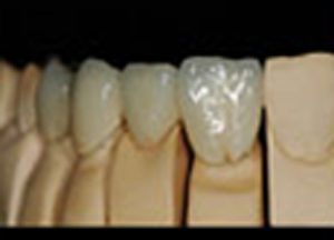 Dental bridges pa