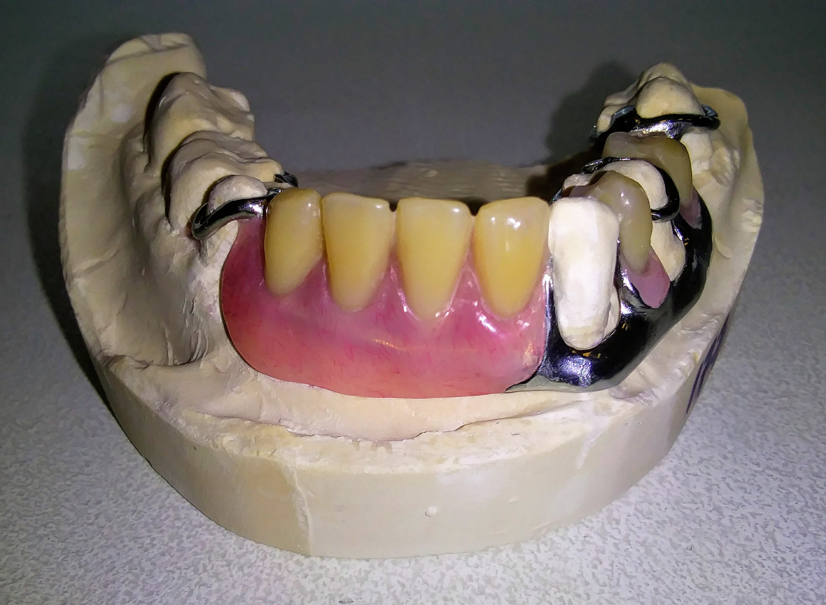 Metal Partial Denture for lingual tilted teeth (special case)