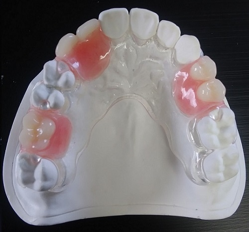 Clear Met Partial Denture (Metal-Free)