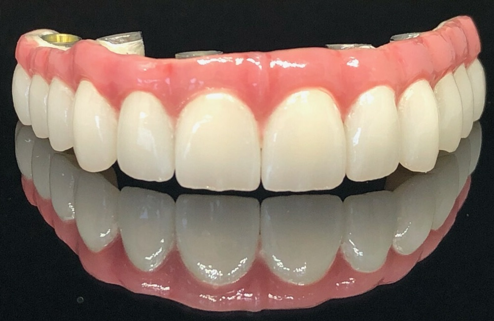 Hybrid implant case featuring a Pekkton frame and multilayered zirconia crowns