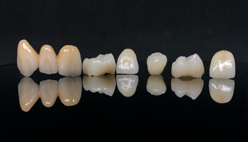 3-unit porcelain fused to metal bridge and porcelain fused to zirconia crowns