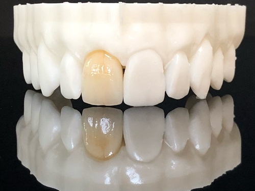 Porcelain fused to zirconia crown