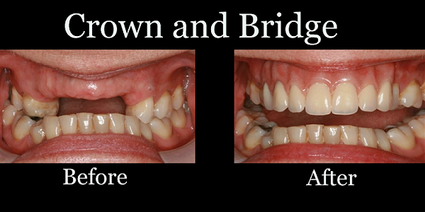 bruxzir dental lab pa