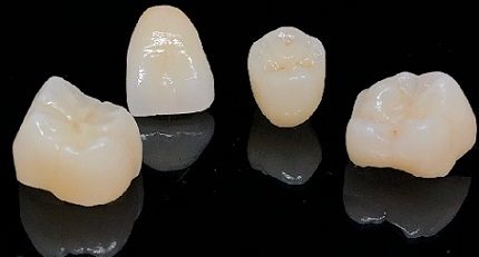 Porcelain fused to zirconia crowns