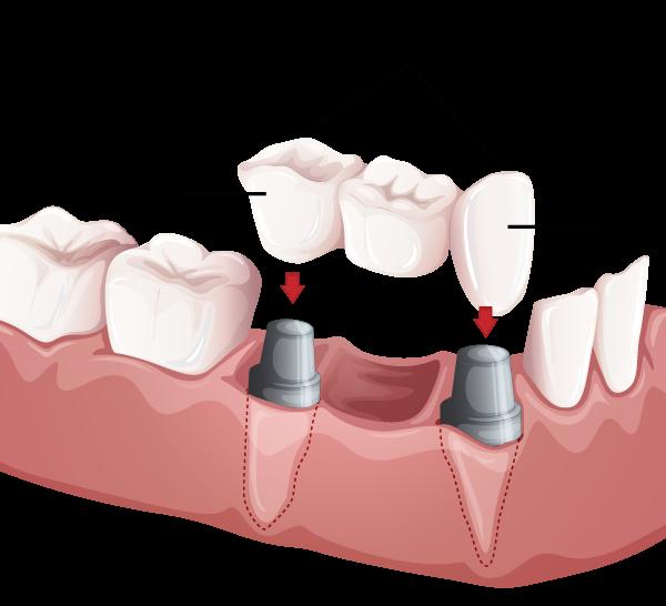 Dental Bridge Pennsylvania