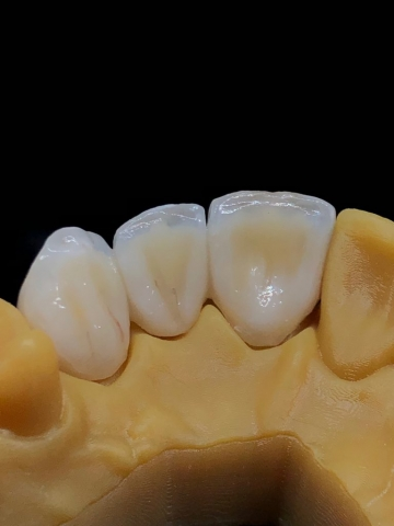 3-unit bridge made with layered zirconia