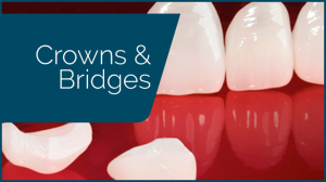 affordable dental crowns bridges pa